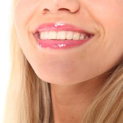 5 мифов о зубах