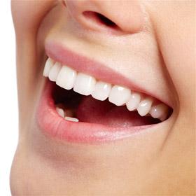 Нужны белые зубы? Отбеливание зубов в домашних условиях