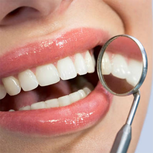 Памятка для отбеливании зубов